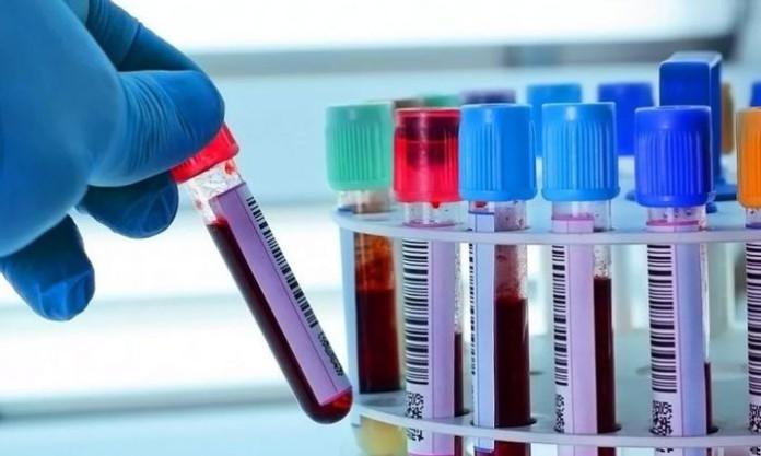 Новосибирские ученые тестируют новый способ лечения коронавирусной инфекции